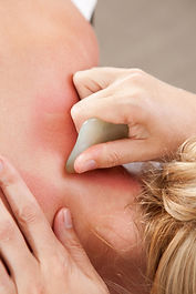 Auf dem Bild sehen sie eine Gua Sha Behandlung am Nacken. Schon eine Behandlung kann bei chronischen Kopfschmerzen Wunder wirken.