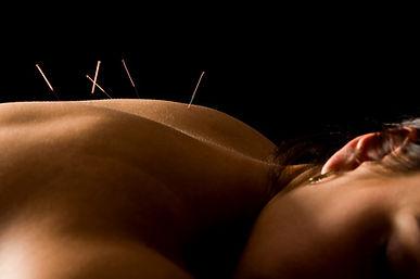 Akupunktur am Rücken wirkt regulierend auf die inneren Organe und kann Rückenschmerzen effektiv lindern.