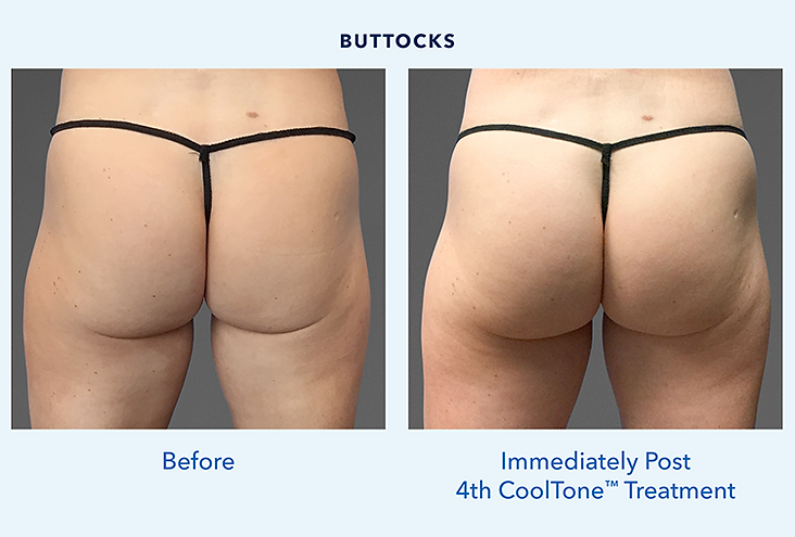 CoolToneButtFemale_BeforeAfter.png