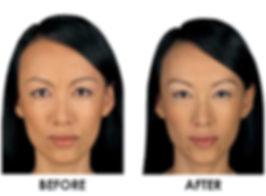 best cosmetic dermatology stamford ct