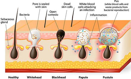 acne dermatologist stamford ct