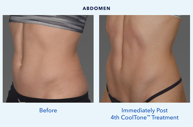 CoolToneAbsFemale_BeforeAfter2.png