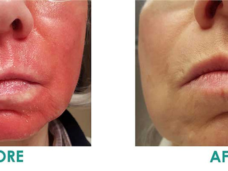 SoCo Patient Interview: Dr. Evans Unmasks a Perplexing Skin Riddle