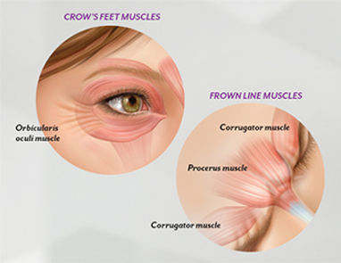 botox injections stamford, ct fairfield county