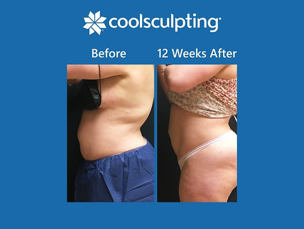 LandingPage_CoolSculpt_BeforeAfter_Blue.