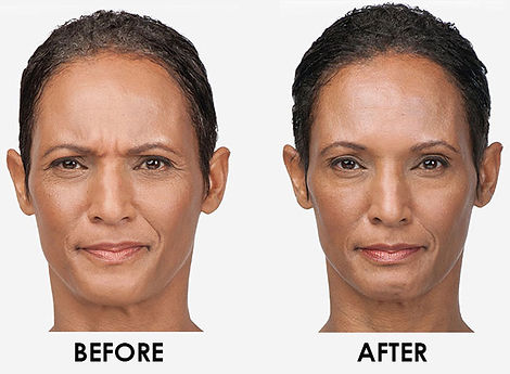 botox in stamford ct