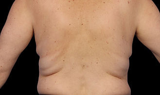 coolsculpting back before