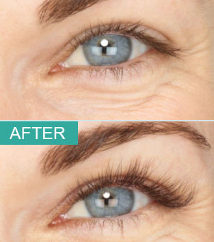 Latisse for Eyelash Enhancement