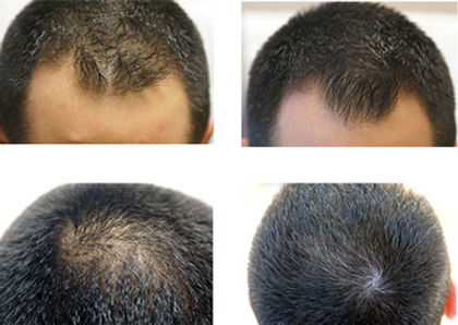 PRP hair loss stamford ct