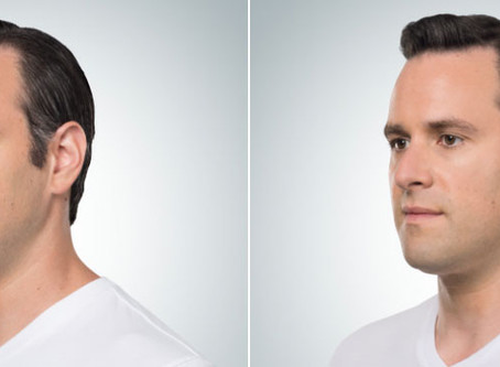 Melt Away Your Double Chin with Kybella