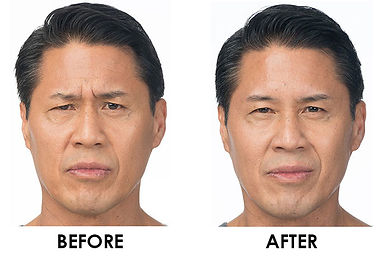 mens skin care stamford ct