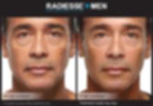 wrinkles stamford ct