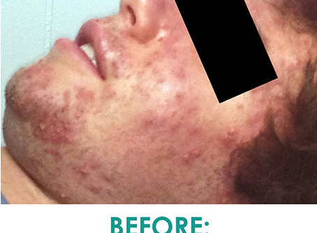 SoCo Patient Interview: A Case of Life Threatening Acne