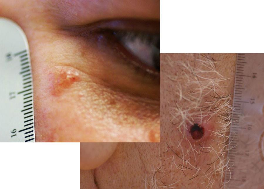 Skin Cancer Critical Steps To Health