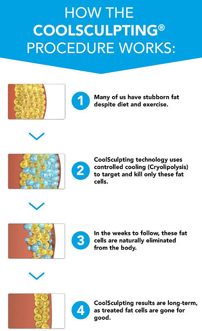 coolsculpting stamford