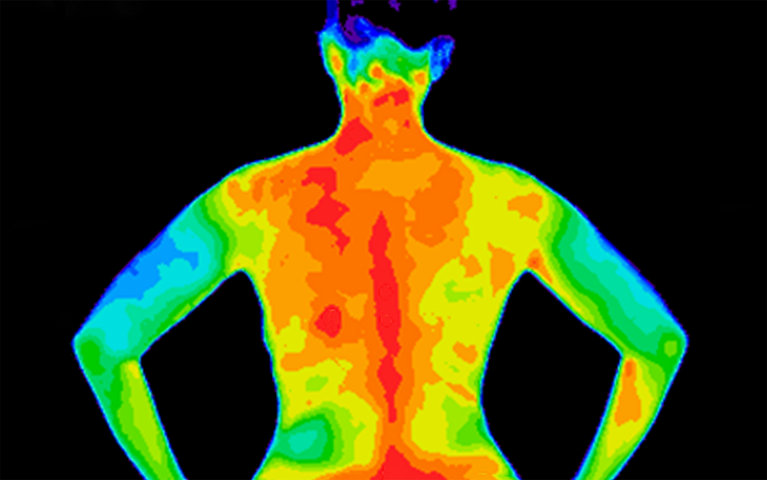 Thermographic photo of back of upper bod