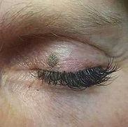 before-seborrheic-keratosis-eye.jpg