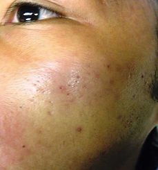 before-acne-scars.jpg