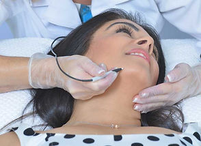 electrolysis-treatment-clear-complexions