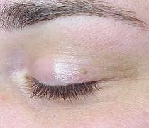 before-skin-tag-eye-lid.jpg