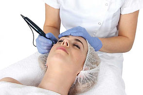Microneedling Treatment Clear Complexions