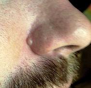 before-sebaceous-hyperplasia.jpg