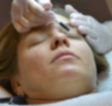 skin-tag-removal-eye-lid-area-clear-comp