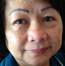before-brown-spots.jpg