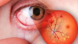 retinopatía-diabética-810x456.jpg
