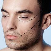 Cirugia-estetica-competitividad-laboral-