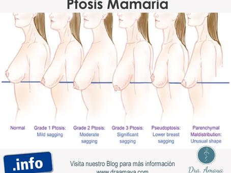 ¿Qué es la Ptosis mamaria?