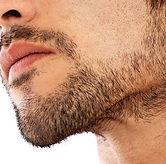 chin-liposuction-500x500.jpg