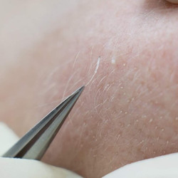 L'épilation électrique pour le corps et le visage