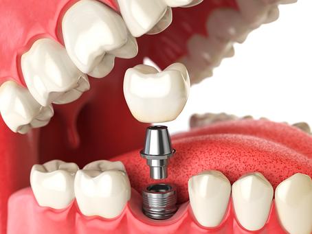 Implante Dentário em Guarulhos -  Profa. Dra Aline Cavalcante Especialista em implante dentário