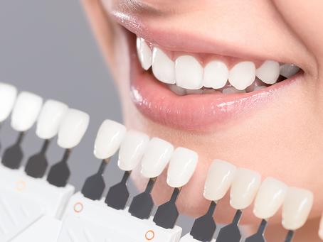 Lente de contato dental guarulhos # Lente de contato dental tatuapé