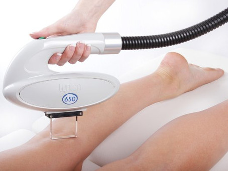 Laser hair removal is here!
