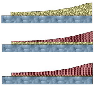 Steinerfilm profile soft transition linear resistance profile metalization