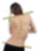 Sign-of-Scoliosis-fig_edited.png