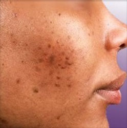 acné-1.jpg