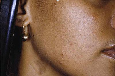 acne-in-skin-of-color.jpg
