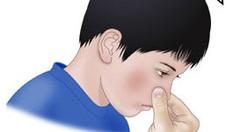 Help - my child's nose keeps bleeding!