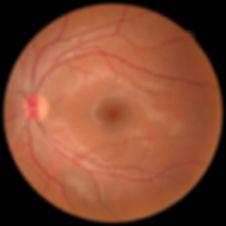 retinografía en óptica Prisma Tenerife