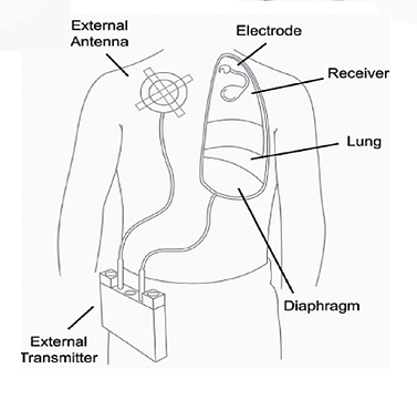 Diagram Of Lung Section