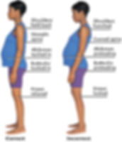 postural alignment in pregnancy.jpg