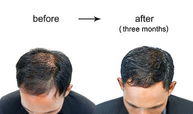 hairtransplant before and after