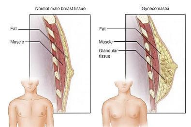 gynecomastia illustration