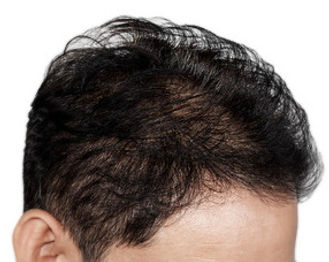 Hair transplant Switzerland