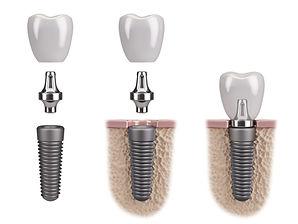 implant plier implantaire couronne