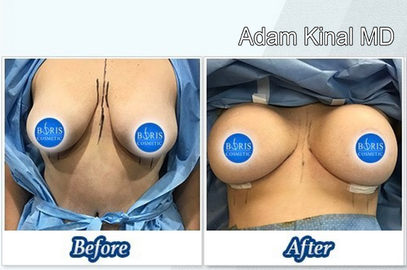 Breast lift/ Implant