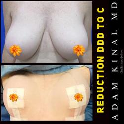 breastreduction955